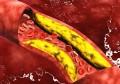 甘油三酯超标?尽量少吃4物,提醒:稳定血脂,多吃3物,做好3事